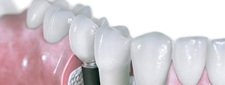 tand implantat
