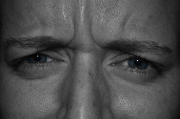 øjenoperation laser